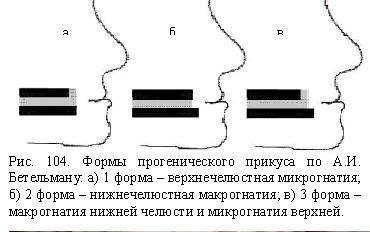 Форми Прогеніческій прикусу