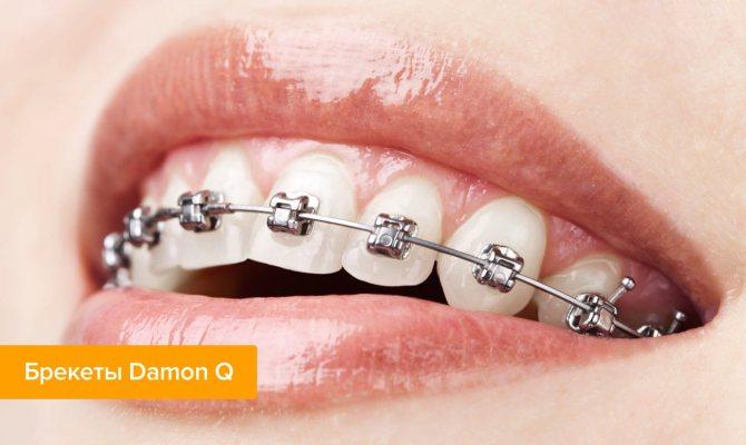 Фото брекетів Damon Q на зубах