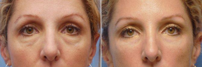 Фото до і після блефаропластики транскон'юктівальной