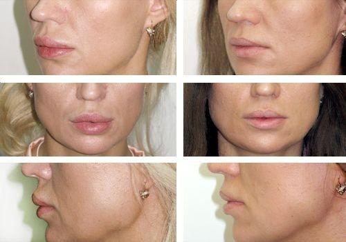 Фото до і після хейлопластики