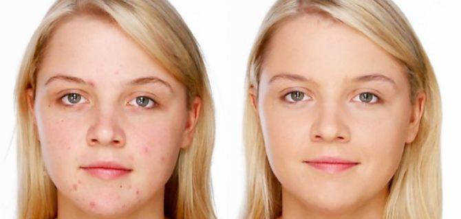 Фото до і після лікування прищів пастою