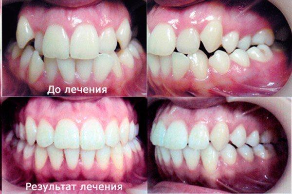 фото до і після лікування