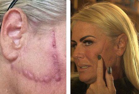 Фото до і після невдалих операцій