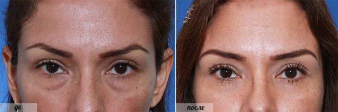фото до і після операції