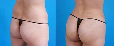 фото до і після підтяжки нитками