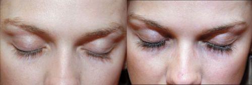Фото до і після застосування - Latisse