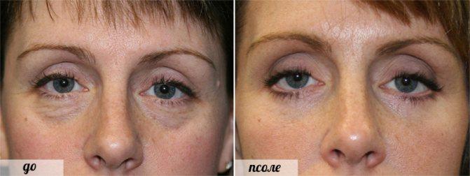 фото до і після Транскон'юнктивальна блефаропластики