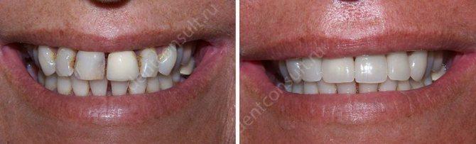 Фото до і після установки коронок з цирконію