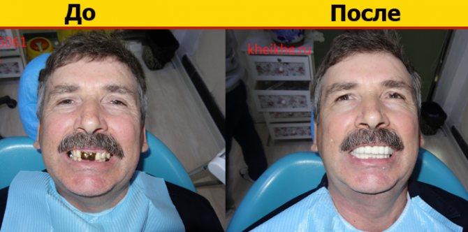 фото - до і після установки протезів