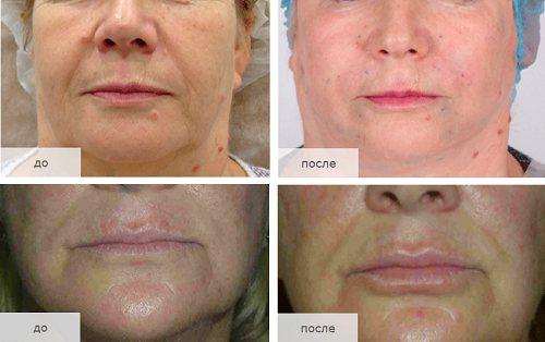 Фото до і після збільшення губ нитками