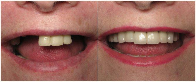 Фото до і після