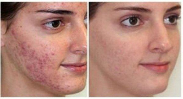 Фото до лікування і після