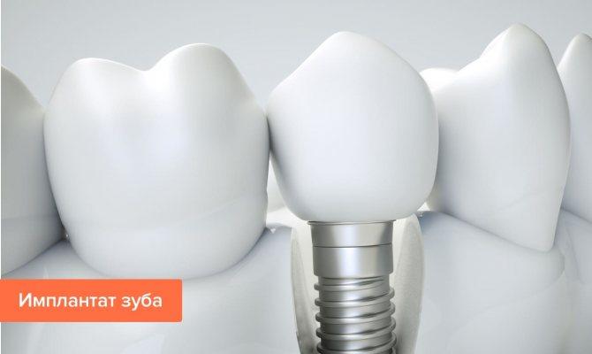 Фото імплантату зуба
