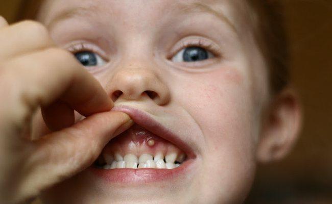 Фото кісти ясна зуба у дитини