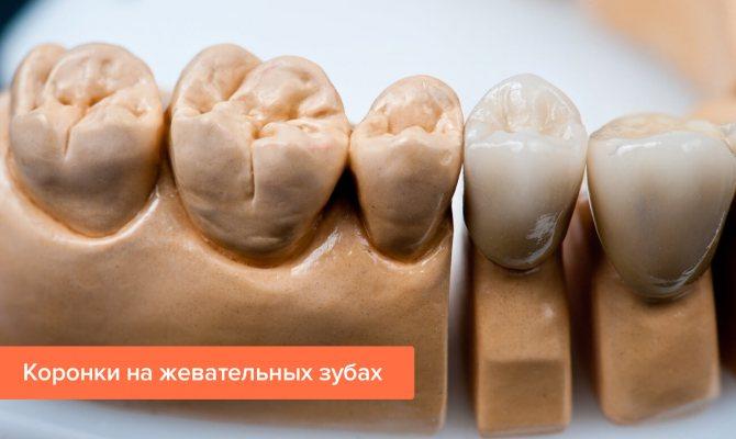 Фото коронок на жувальних зубах