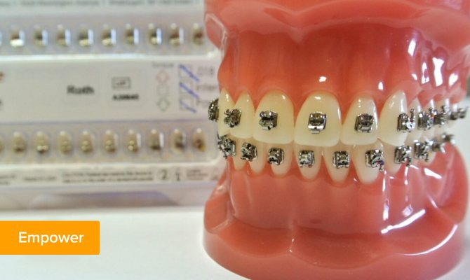 Фото металевих брекетів American Orthodontics Empower