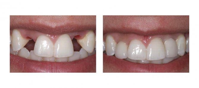 Фото пацієнта до і після імплантації зубів
