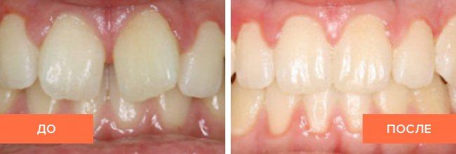 Фото пацієнта до і після лікування елайнери