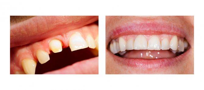 Фото пацієнта до і після протезування з обточуванням зубів