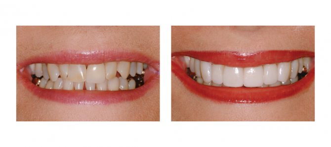 Фото пацієнта до і після установки Люмініри на зуби