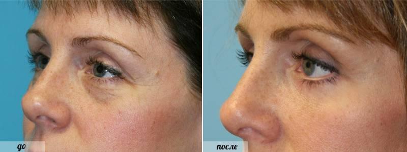 фото після операцмм з видалення мішків під очима