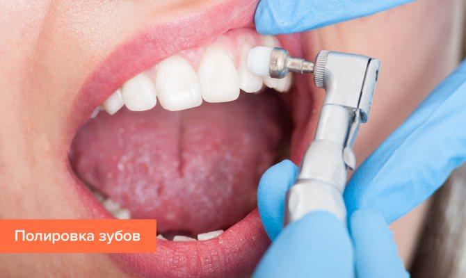 Фото процедури полірування зубів