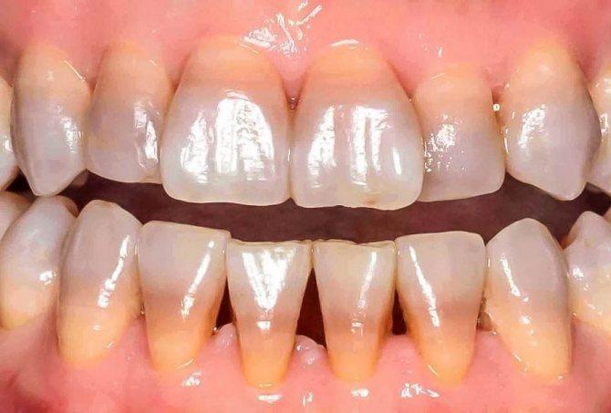 фото тетрациклінові зуби
