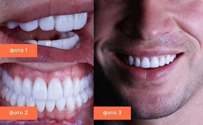 Фото посмішки з різних ракурсів після установки ортопедичних виниров з кераміки.