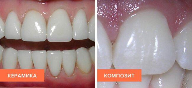 Фото виниров з кераміки і композиту на зубах