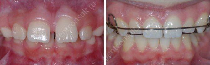 Фото: зуби до і після лікування