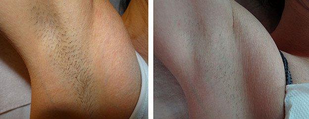 Фотоепіляція до і після
