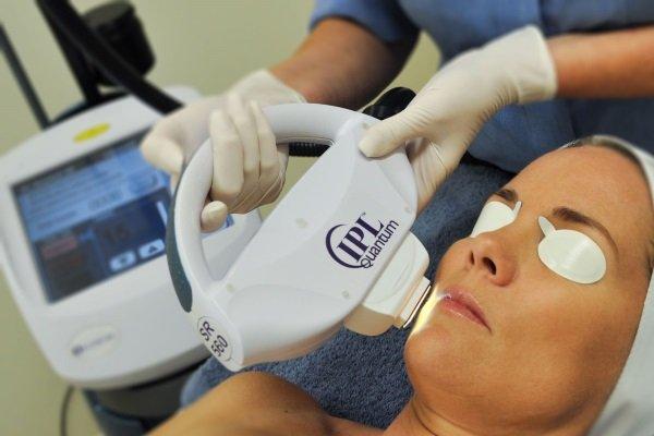 Фототерапія при купероз має позитивні відгуки