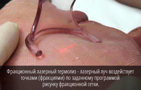 Фракційний фототермоліз. Що це за процедура, ефекти, як робиться, фото до і після, відгуки, ціна
