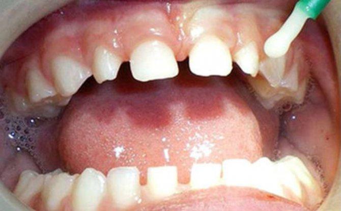 Фторування молочних зубів