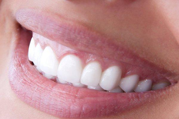 Де можна замовити білий новий металокерамічний зуб