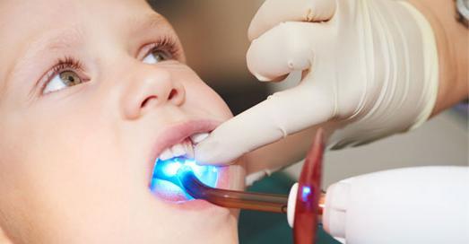 герметизація зубів у дітей