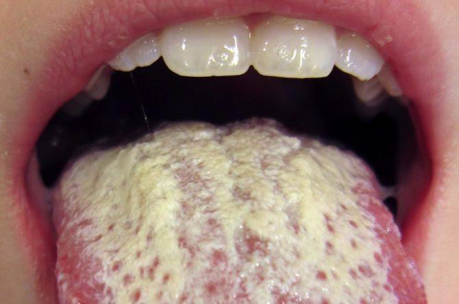 герпетичний глосит
