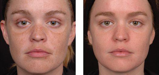 Гіперпігментація: до і після лікування