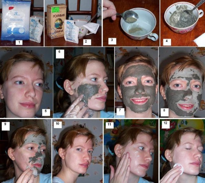 Глибока чистка обличчя в домашніх умовах від чорних крапок, прищів. Як роблять, протипоказання, фото, відгуки та результати