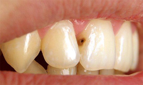 Глибокий карієс на передньому зубі