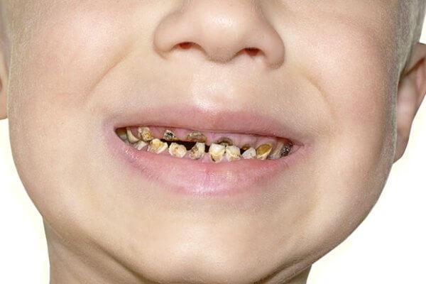 гнилі зуби у дітей