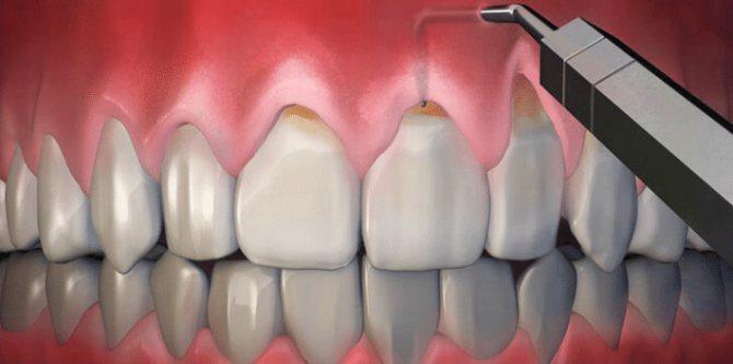 Хірургічне лікування оголення шийки зуба