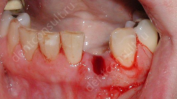 «Хлоргексидин» після видалення зуба: інструкція полоскання і свідчення застосування розчину