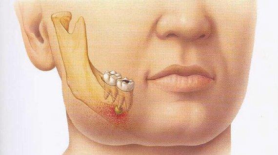 хронічний пульпіт