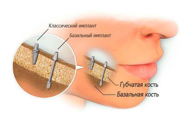 Імпланти для зубів