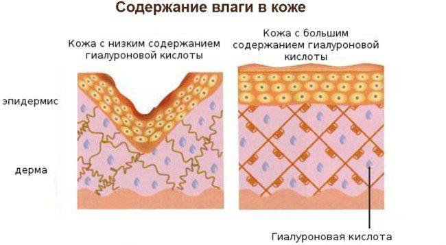 Ін'єкції гіалуронової кислоти для особи (губи, під очі, лоб). Фото до і після