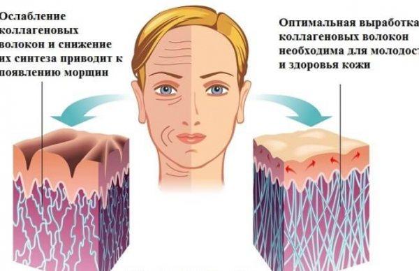 Ін'єкції колагену для особи