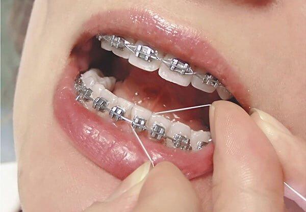 Використання зубної нитки для брекетів