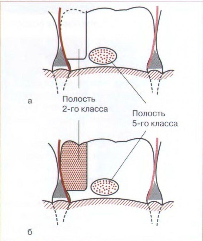 Витончення зубної емалі