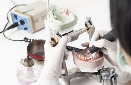 виготовлення бюгельного протеза на замках
